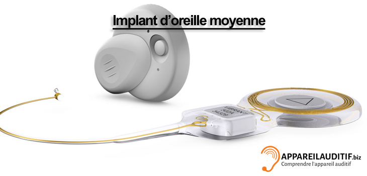 audio-Implant-oreille-moyenne