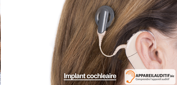 implant auditif cochleaire