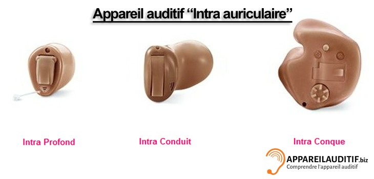 Appareil-auditif-Intra-auriculaire
